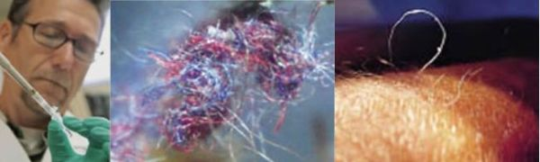 morgellons-fasern