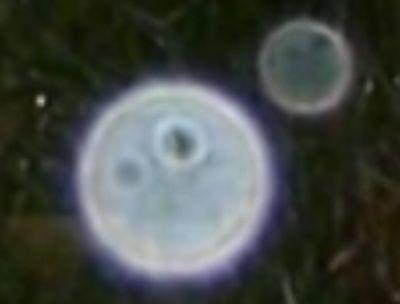 orbs-farbe-hell-struktur-gesichtaehnlich