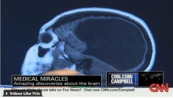 ohne Gehirn und trotzdem intelligent ~ ganz ohne Hirn? ~ wie geht ...